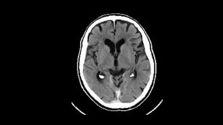Brain Scan (example of scarred brain)